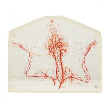 Blood vessels fox in resin part 1 + 2